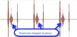 heart murmur example diamond shape