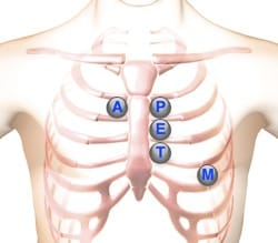 heart murmur sounds auscultation location areas
